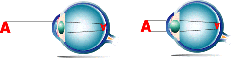 cataracte site information Cataracte Oeil normal