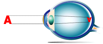 Cataracte opacification cristallin
